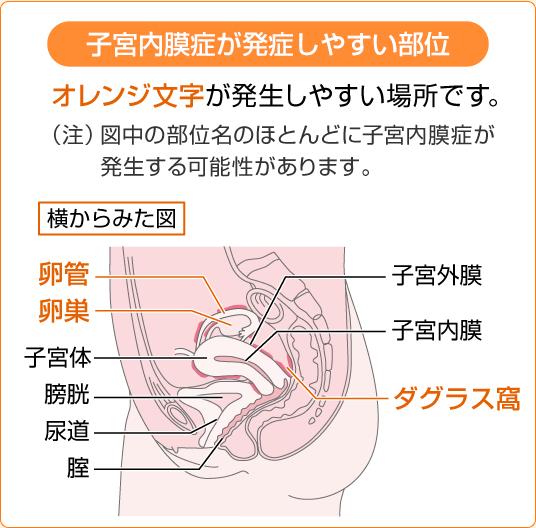 子宮内膜症・子宮筋腫の方への治療方針